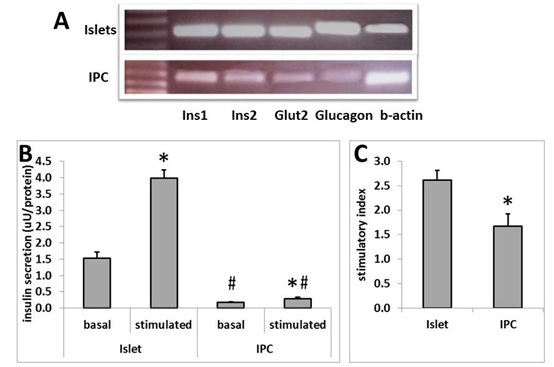 Transcriptome Analysis of Mesenchymal Stem Cells Differentiated into Insu- lin-Producing Cells Reveals Dissimilarities with Pancreatic Beta Cells in Re- sponse to Glucose