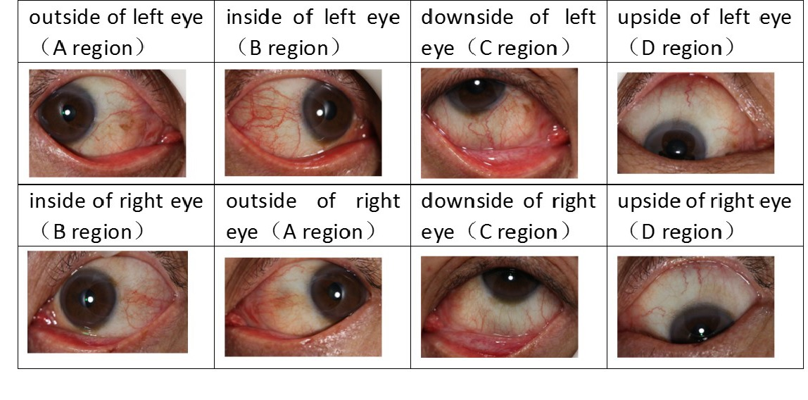 Artificial Intelligence-Based Eyefeature Imaging for Early Diabetes Aided Diagnostics