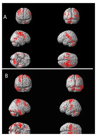 Functional Recovery After Bone Marrow Derived Stem Cells in Stroke- A fMRI & Growth Factor Correlation