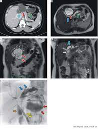 Hepatic Mucinous Cystic Neoplasm with Fistulation to The Duodenum: A Rare Case of Recurrent Cholangitis
