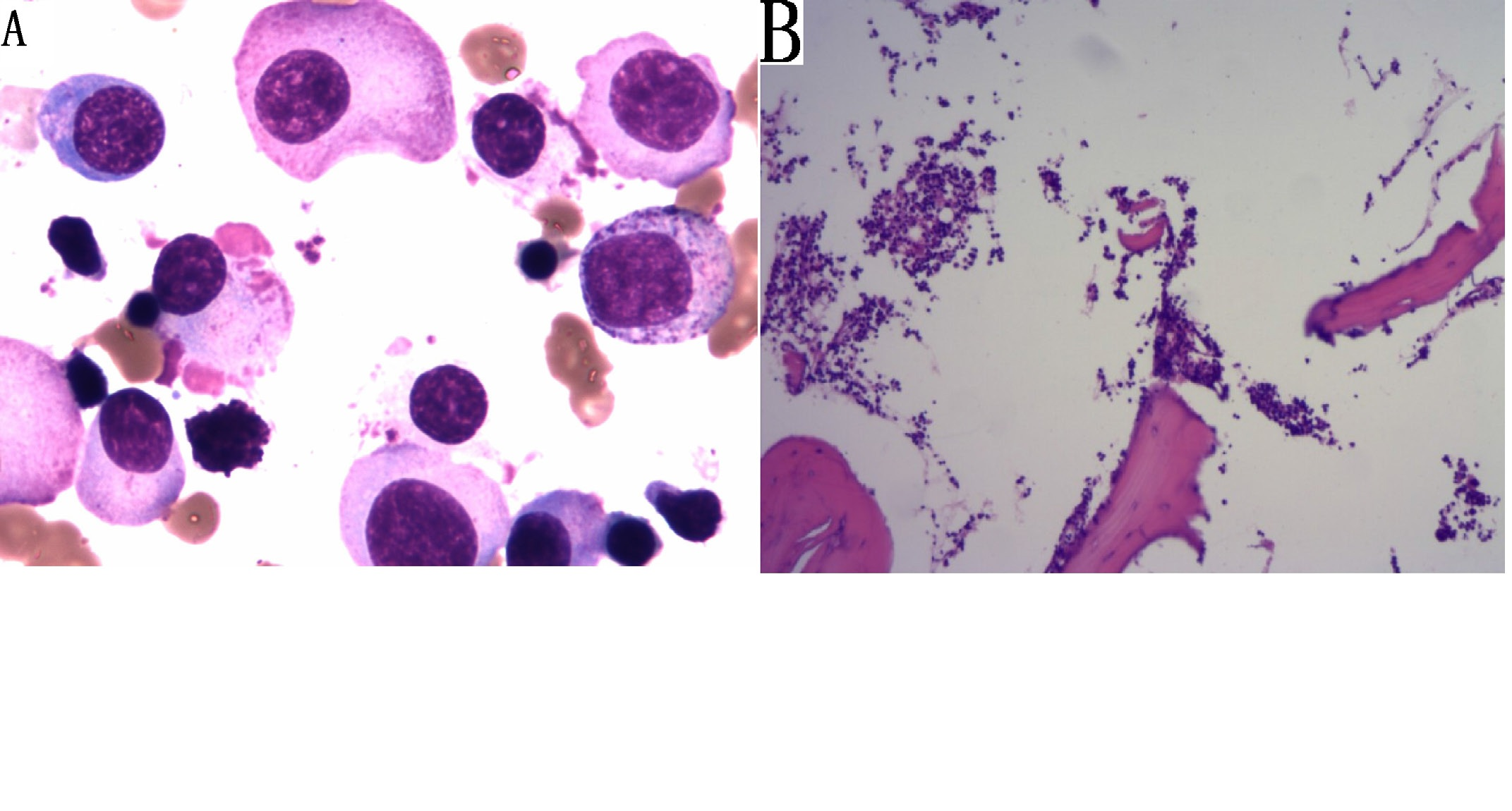 Multiple Myeloma Following Bladder Cancer Successfully Treated with Bortezomib: A Case Report and Review of Literature