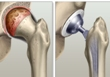 Visual loss after hip and shoulder arthroplasty, two case reports.